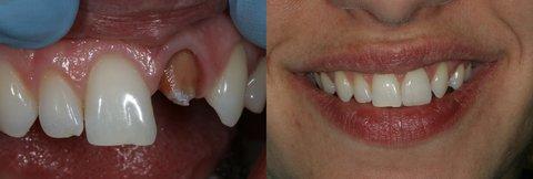 FOTKA - Chybí vám zub? Poradíme, co s tím