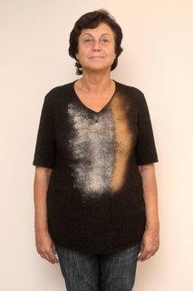FOTKA - Mladší o pár let - Vyhořelé zdravotní sestry