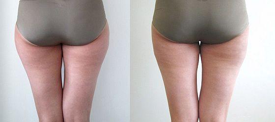 srovnání před a po liposukci