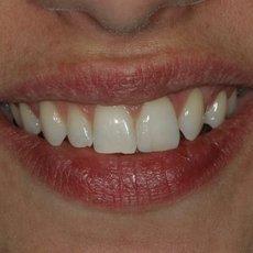 Chybí vám zub? Poradíme, co s tím
