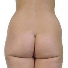 liposukce