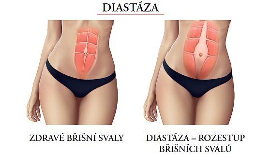 Diastáza