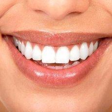 Rovné, bílé, elegantní zuby. S fazetami rychle a bezbolestně.